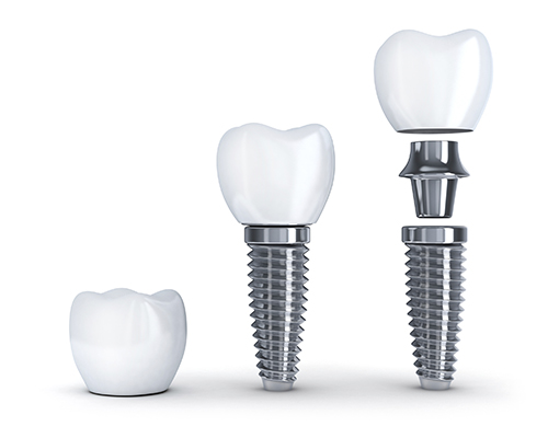 Dental Implants from Dynamic Dental Care in Spokane, WA - Crown, Crown & Implant, Crown, Implant & Post (exploded view).