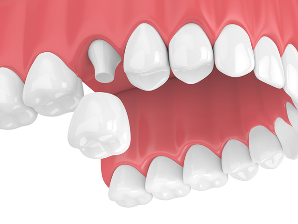 Rendering of jaw with porcelain dental crown from Dynamic Dental Care in Spokane, WA
